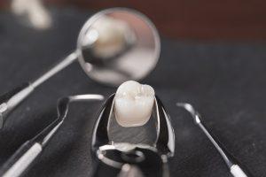 Teeth-Extractions