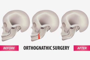 Pleasant Orthognathic Surgery Mahogany Oral Maxillofacial Surgery Calgary Wiring Cloud Oideiuggs Outletorg