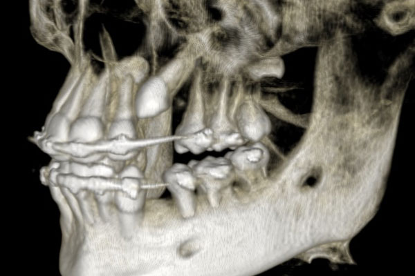 Exposure Impacted Teeth
